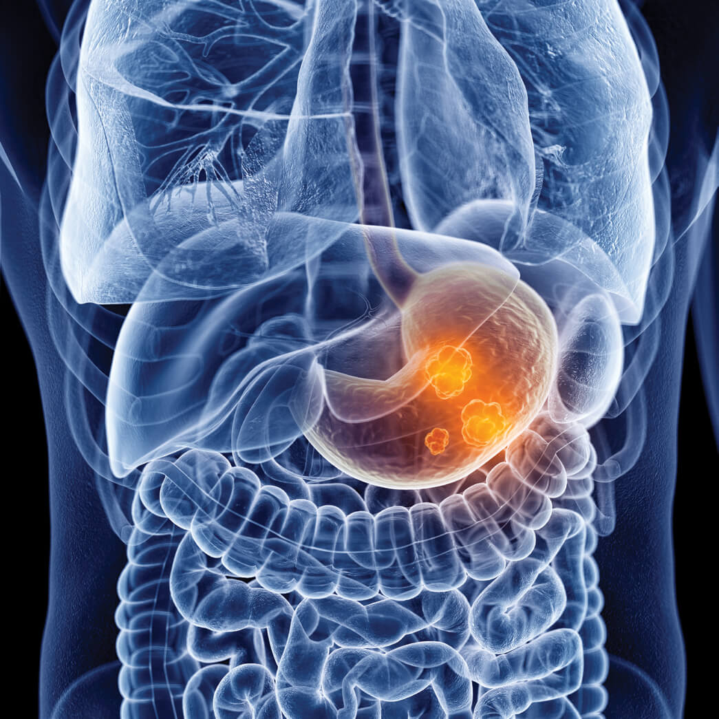 Understanding Peptic Ulcers This Quarterly